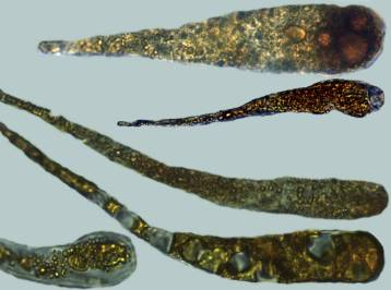 Photo 10 - gloeocystis non pédicellées2 x1000-redim1024