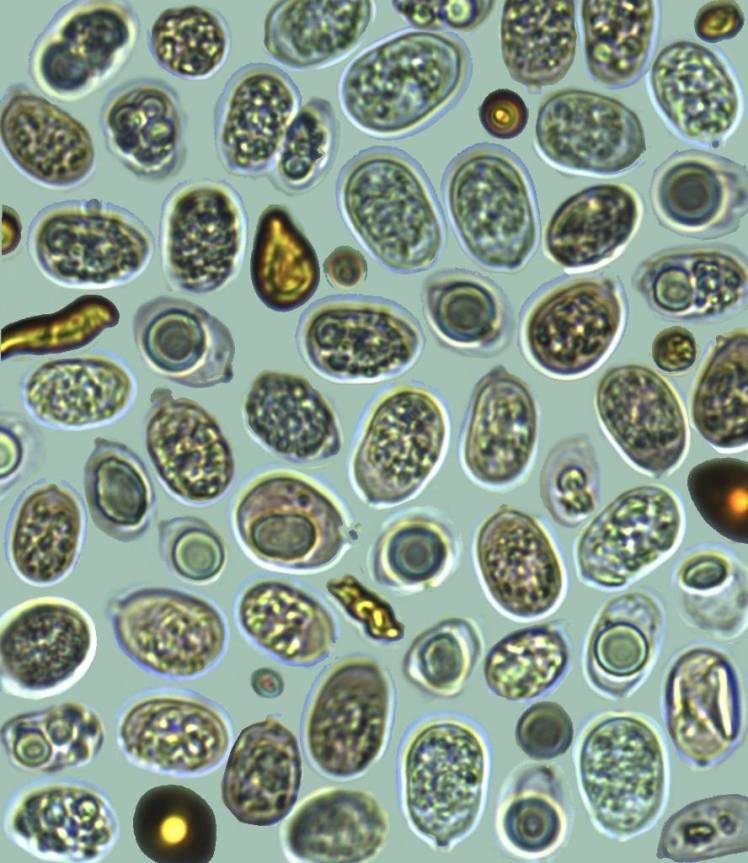 Photo 3 spores 9,3-11,5 x 5-8µ-redim1024