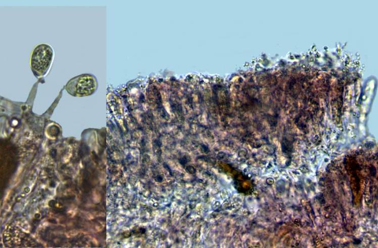 Photo 4 -basides en palissade stérigmates 8 -12 (14)µ-redim1024