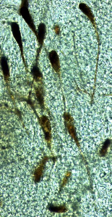 Photo 8 - gloeocystis pédicellées1 x400-redim1024