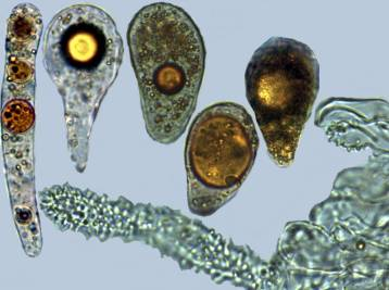 Photo 9 - gloeocystis non pédicellées1 x1000-redim1024